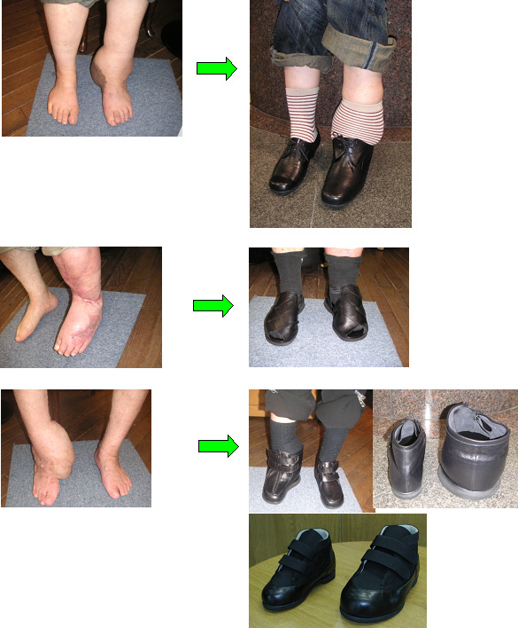 ... 大きいの方の靴・足と靴と健康